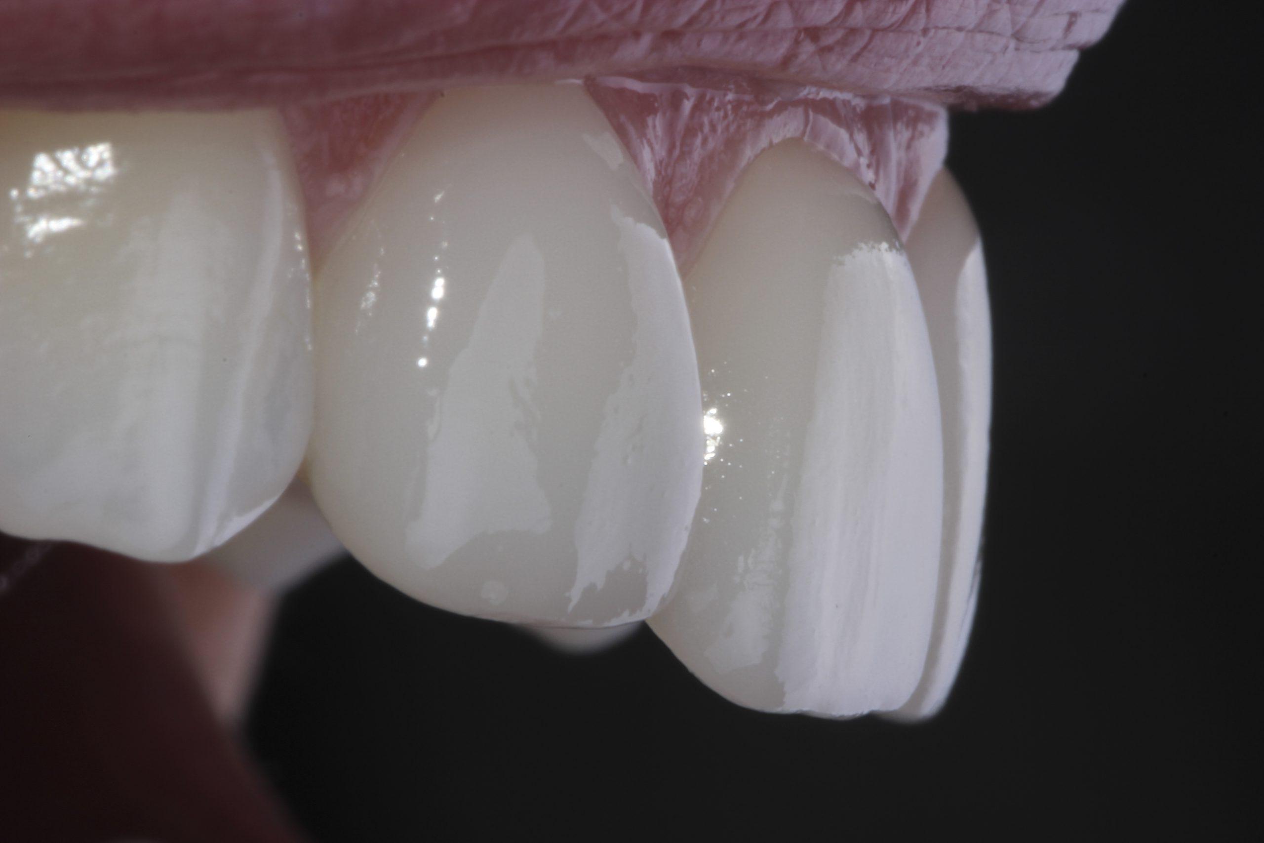 carillas munt espai dental