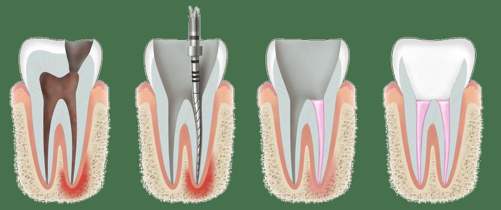 endodoncia munt espai dental
