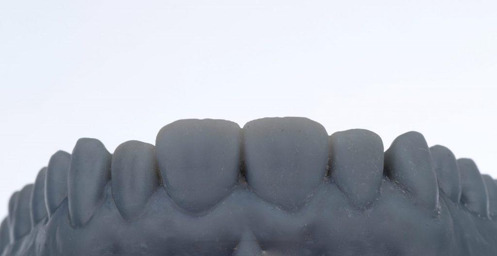 impresiones digitales munt espai dental